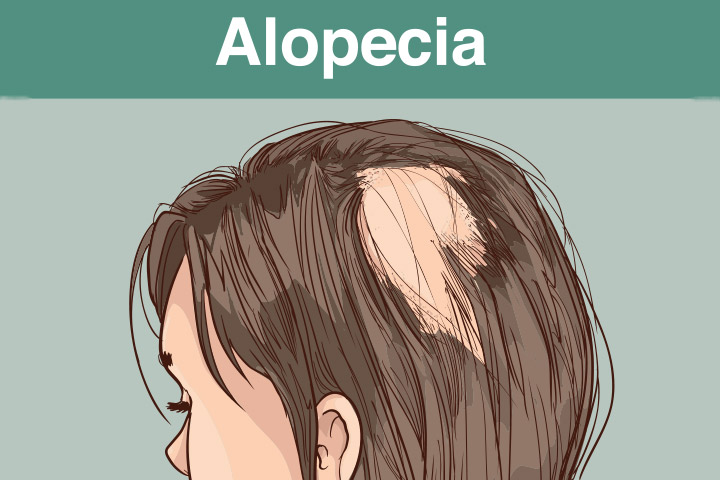 Definition of Alopecia and Its Treatment